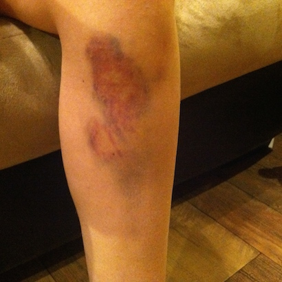 Bruised leg from being kicked by a horse